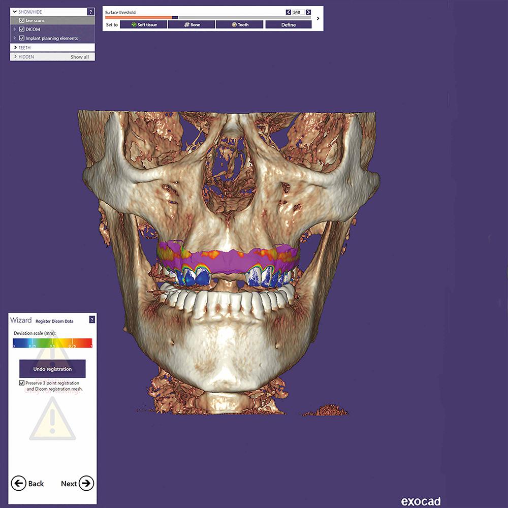 Dental CAD Exocad packages