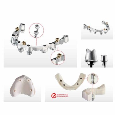 Implant Components